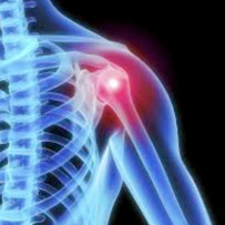 "Shoulder Rehabilitation Point ""La Spalla"""